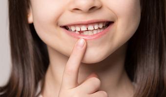 O que fazer quando os dentes de leite amolecem?